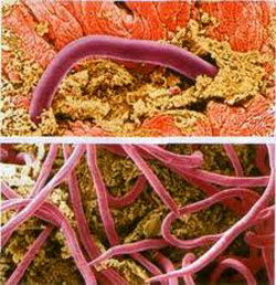 черви живущие в кишечнике человека фото